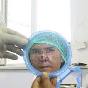 'Ele sacou uma faca e cortou meu nariz': um relato da violência doméstica no Afeganistão
