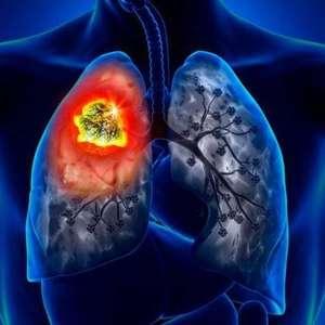 Xalkori (crizotinibe): um medicamento indicado para o ...