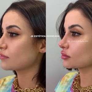 Bianca Andrade aumenta a boca e faz rinomodelação: ...