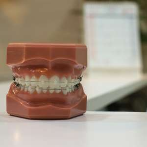 Sem sorriso frouxo! Dentista tira dúvidas sobre dentadura