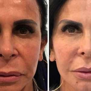 Febre entre famosos, saiba mais sobre a harmonização facial