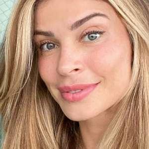 Sem maquiagem, Grazi Massafera nota melhora em melasma ...