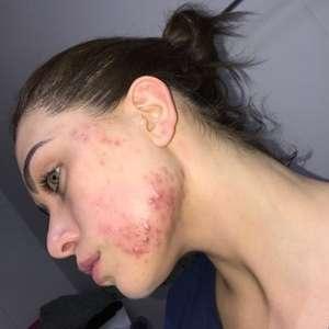 Fernanda Keulla revela autoestima afetada por espinhas ...