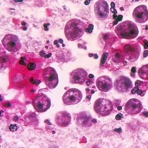 O que levou autoridades do Texas a emitirem alerta sobre ameba 'comedora de cérebros'