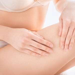 Como evitar celulite: 4 hábitos saudáveis para incluir na rotina