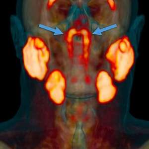 Cientistas dizem ter descoberto por acaso órgão misterioso no centro da cabeça humana