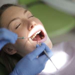 Dentes amarelos são mais resistentes à cárie? Descubra!