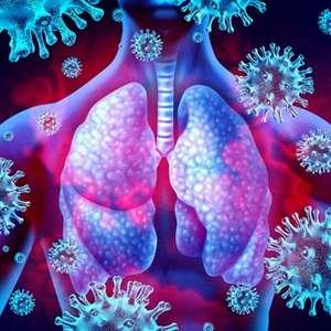 Covid-19 e as doenças respiratórias:  os riscos para ...