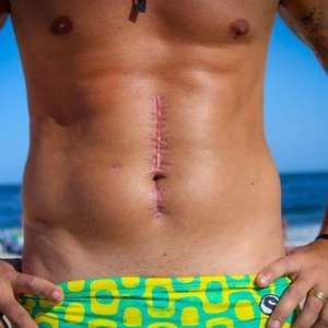 "Bruno Borat exibe cicatriz após sobreviver a tiro: ""Feliz"""