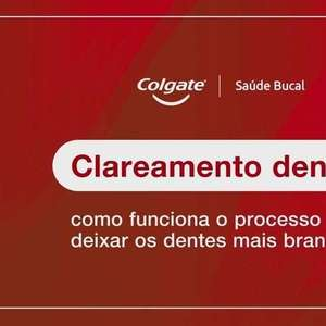 Como Funciona o Clareamento Dental?