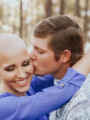 Mulher tira a peruca e assume alopecia nas fotos de noivado