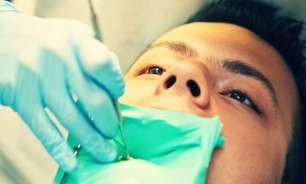 É permitido doar sangue se você extraiu um dente?