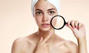 Mapa das espinhas: saiba o que significa a acne em cada área do rosto
