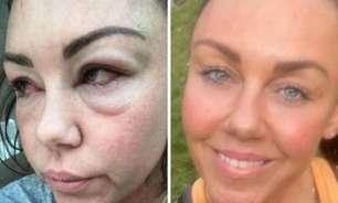 Cantora publica foto antes e depois do alcoolismo