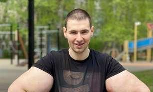 Lutador passa por cirurgia após bíceps explodir durante luta