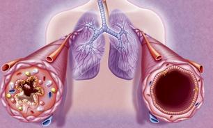 Paulo Gustavo: o que a ciência diz sobre a asma, citada erroneamente como 'comorbidade' do ator
