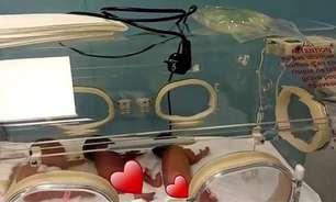 Mulher dá à luz 9 bebês, dois a mais do que achava esperar durante a gestação