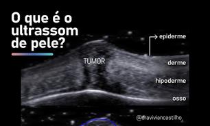 Preenchedores estéticos e câncer de pele podem ser diagnosticados em exame
