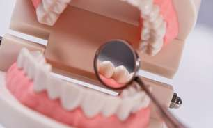 Integrante do CROSP esclarece principais dúvidas sobre dentes do siso
