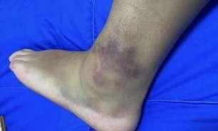 Eliminada no skate, Pâmela Rosa exibe tornozelo lesionado