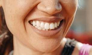 Infográfico: Por que alguns dentes são mais amarelos?