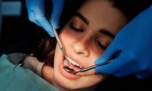 Sonhar com dente: o que significa sonho com dente podre?