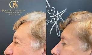 Procedimentos estéticos faciais: decisões judiciais garantem ação por dentistas