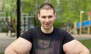 Lutador russo conhecido como Popeye passa por cirurgia e corre risco de morrer após bíceps explodir