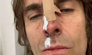 Ex-vocalista do Oasis cai de helicóptero na Inglaterra