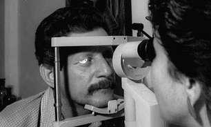 Como cientistas conseguiram resolver enigma de epidemia que deixou 50 mil cubanos cegos