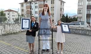 Rumeysa Gelgi, a mulher mais alta do mundo: o que é a síndrome de Weaver, que a deixou tão alta