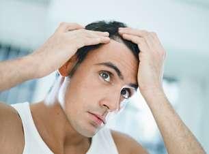 Homens abandonariam cerveja e pornografia para ter mais cabelo