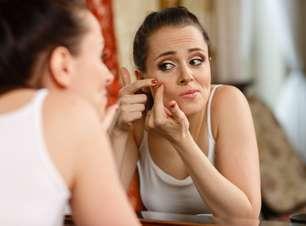 Acne pode ser combatida com a ingestão de probióticos