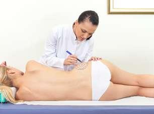 Tratamentos estéticos podem colocar a saúde em risco; veja