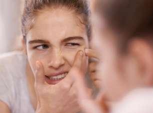 Veja como remover cravos sem danificar a pele
