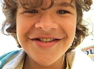 Por que o Dustin, de Stranger Things, não tem dentes?