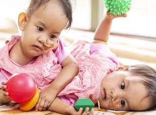 A bem-sucedida cirurgia de separação de gêmeas siamesas na Austrália
