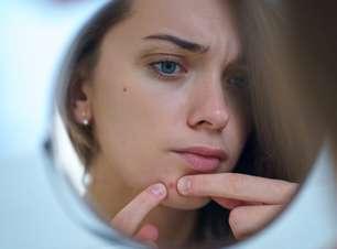 Pele e hormônios: como sincronizar o skincare com o seu ciclo menstrual
