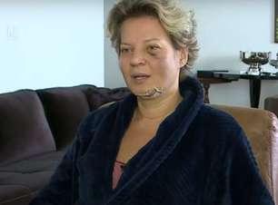 Joice Hasselmann aciona Polícia Legislativa após aparecer com fraturas no rosto e no corpo
