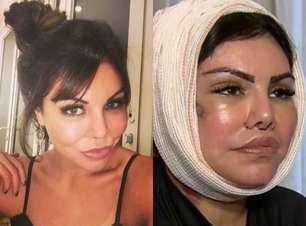 """Imagens fortes! Veja o antes e depois de Liziane Gutierrez, de """"A Fazenda"""""""