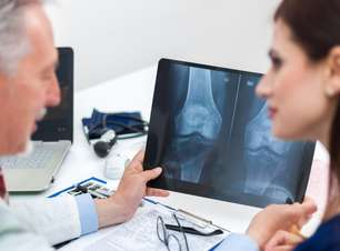 Dia Mundial e Nacional da Osteoporose: evite a doença que atinge 15 milhões de brasileiros