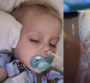 Criança de 2 anos passa por cirurgia após engolir 16 ímãs
