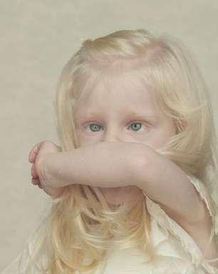 Afrodescentes e indígenas podem ter albinismo?