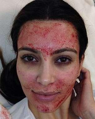 Dica de Kim Kardashian, Facelift de Vampiro deixa pele jovem