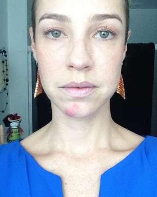 Sem maquiagem, Luana Piovani exibe espinha no Instagram