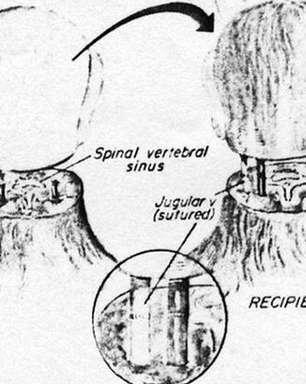Transplante de cabeça pode ser realidade em breve,diz médico