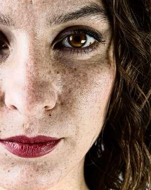 Tratamento com hidroquinona pode manchar a pele