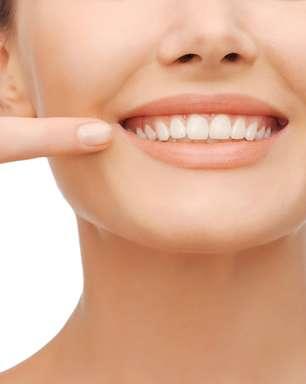 Clarear ou facetar? Qual melhor tratamento para seu sorriso?