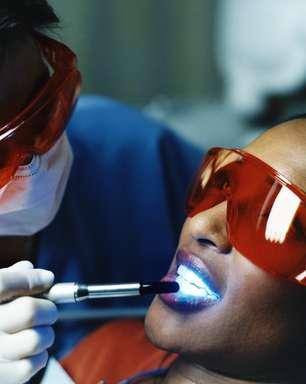 Tres preguntas que debes saber responder sobre el blanqueamiento dental