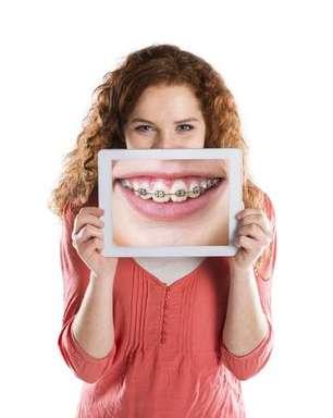 Dicas que ajudarão a cuidar dos dentes com aparelho